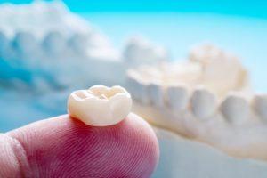how long do dental crowns last restoration on dentist fingertip